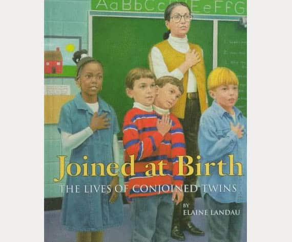 Joined at birth - The lives of conjoined twins - kid crave